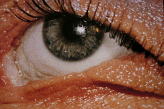 Rewizje oka